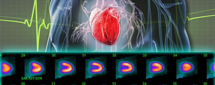 تصویر اسکن هستهای قلب