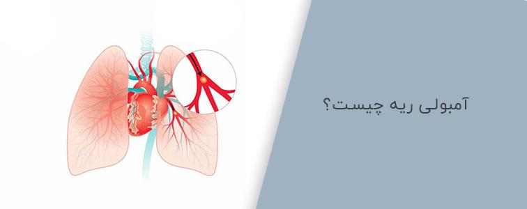 تصویر آمبولی ریه چیست