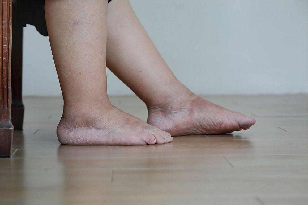 مراقبت از تورم پا