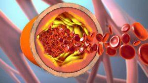 بیماری عروقی چیست؟